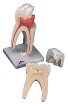 Upper Triple-Root Molar, 3-part